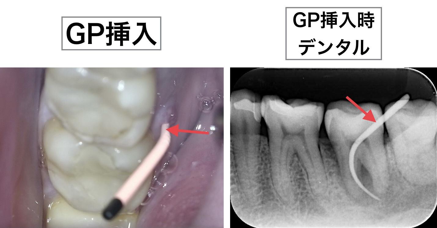 根管治療 デンタルX線画像 GP挿入時