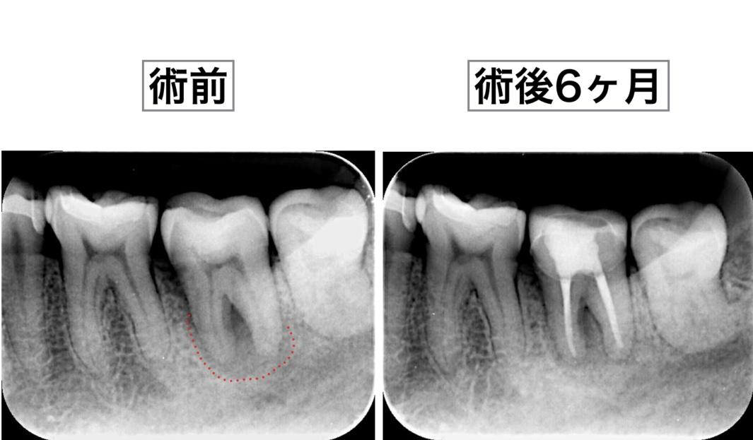 根管治療 デンタルX線画像 6ヶ月経過観察