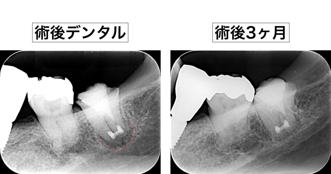 意図的再植術 術後3ヶ月X線画像