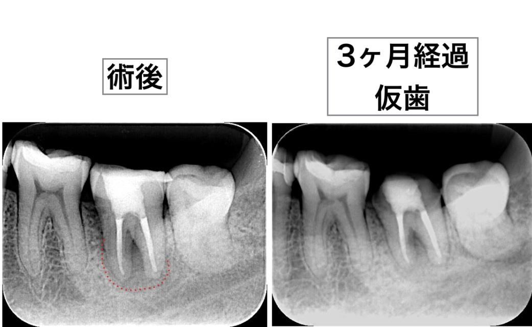 根管治療 デンタルX線画像 3ヶ月経過観察