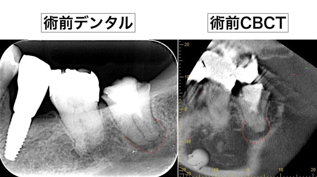 意図的再植術 術前X線画像