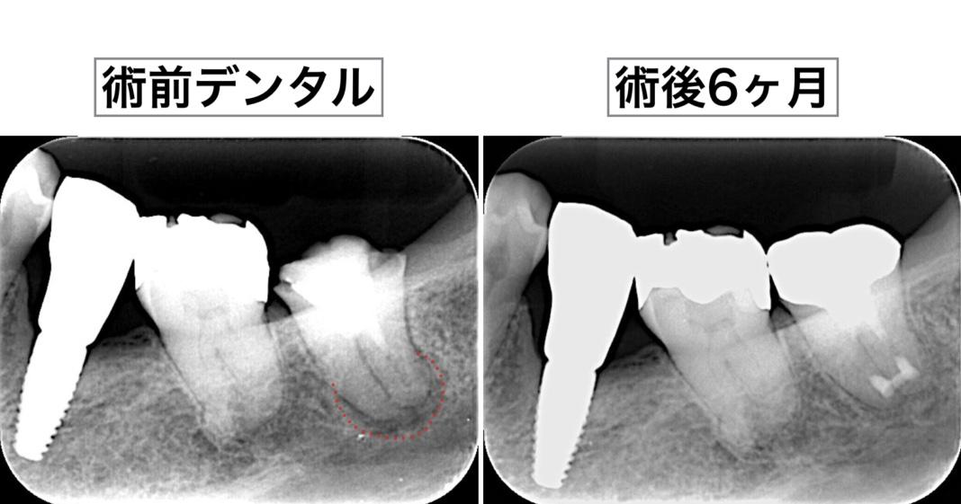 意図的再植術 術後6ヶ月X線画像
