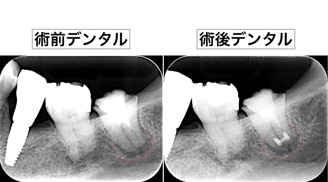 意図的再植術 術前術後X線画像